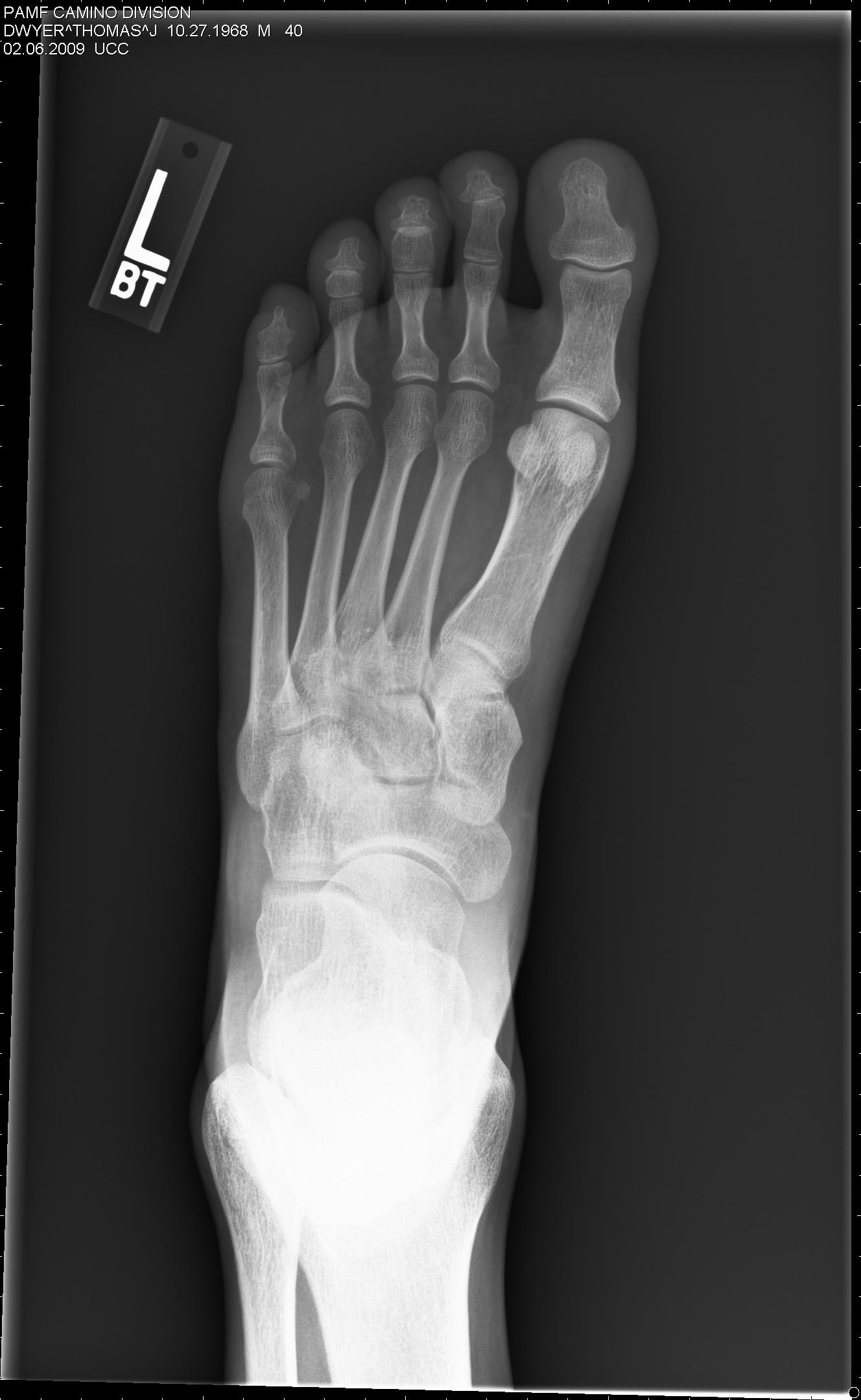 X ray broken foot